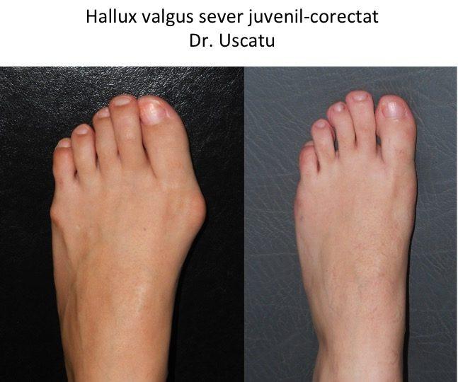 HV Raicu
