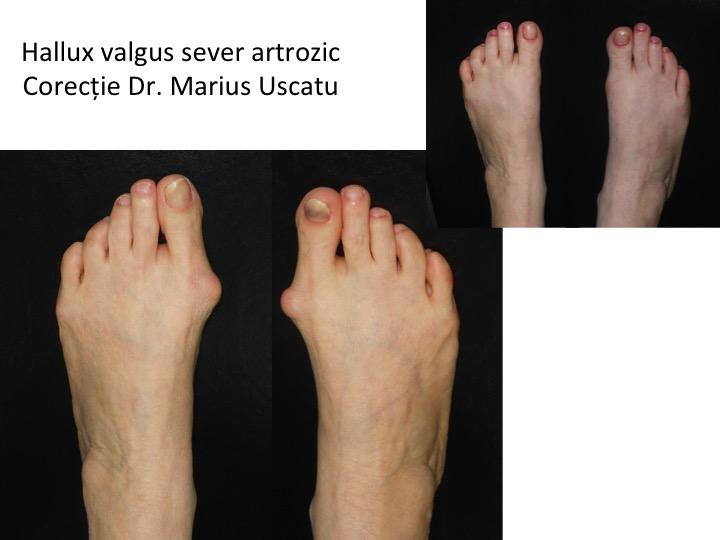 HV artrozic