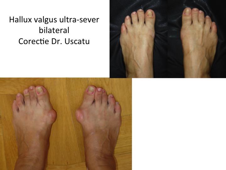 HV ultra-sever bilateral 6