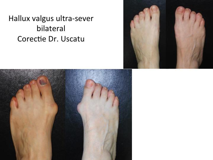 HV ultra-sever bilateral