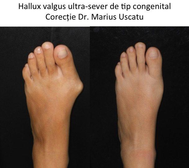 HV ultrasever Sisu