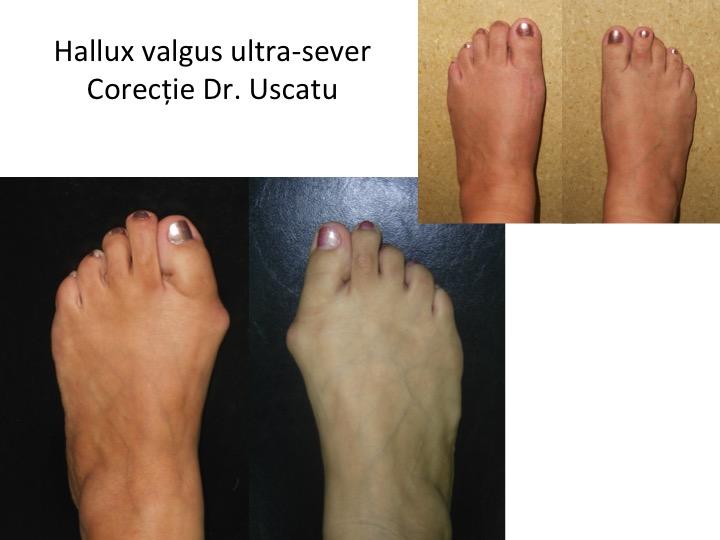 HV ultrasever