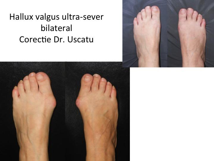 HV ultrasever bilateral Lazar