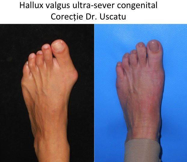 HV ultrasever congenital Corbu