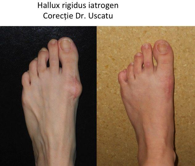 Hallux rigidus iatrogen
