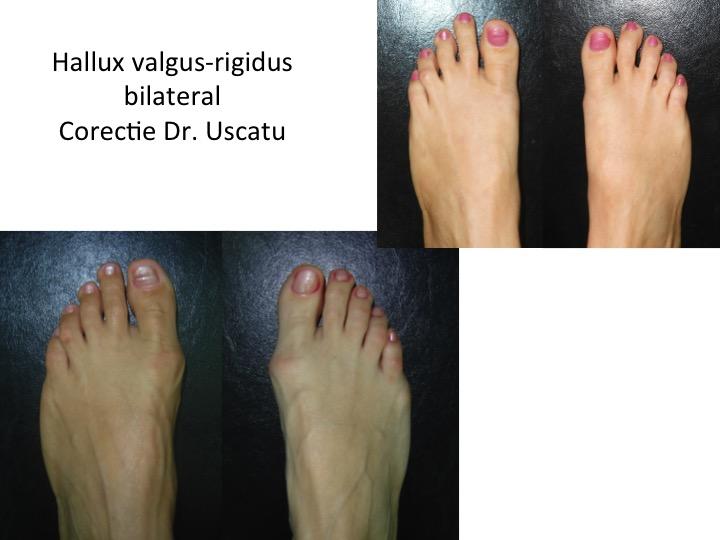 Hallux valgus-rigidus bilateral Ialgoczi