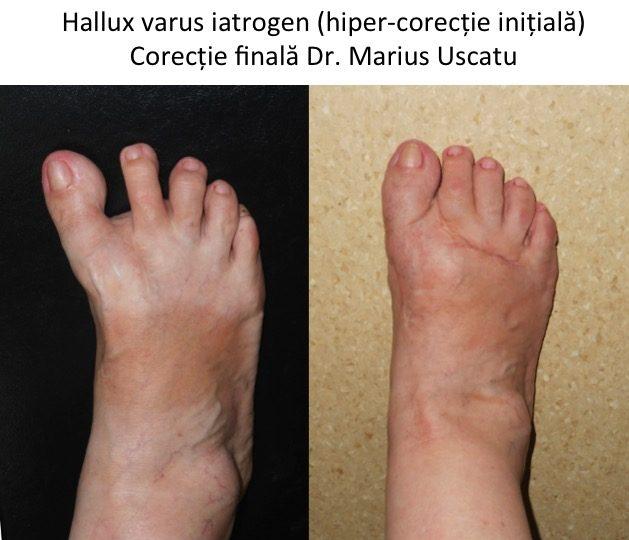 Hallux varus corectat
