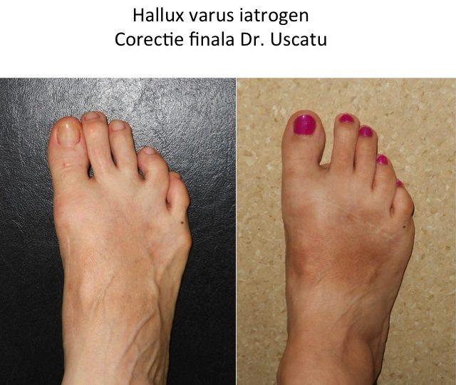Hallux varus corectat Chirnoaga