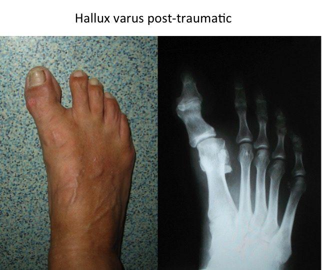 Hallux varus post-traumatic