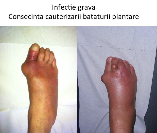 Infectie grava dupa indepartarea bataturii