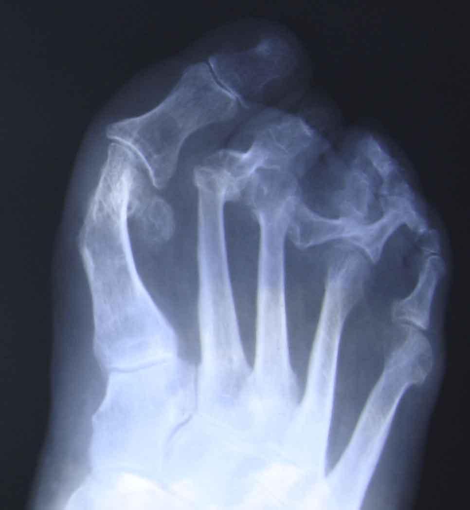 Luxatii grave dupa chirurgie mutilanta