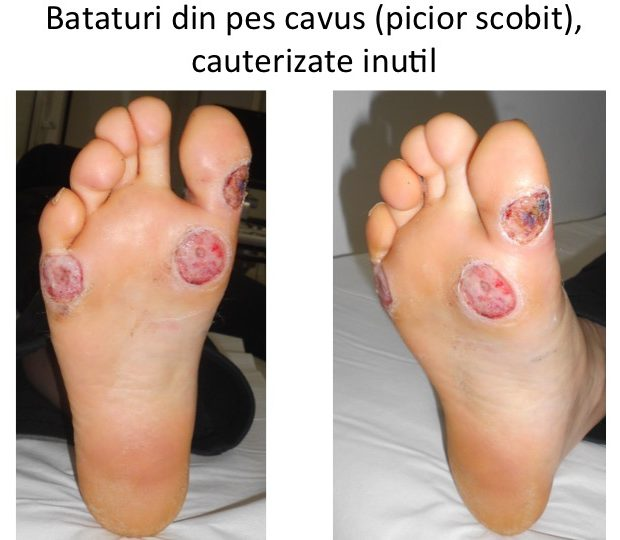 MT 1-5 cauterizate