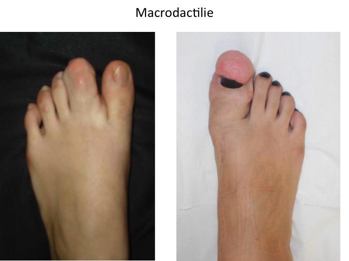 Macrodactilie