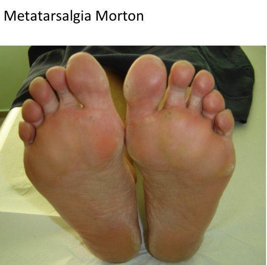 Metatarsalgie Morton