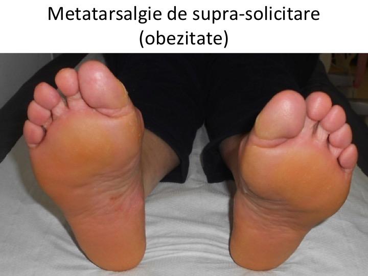 Metatarsalgie obezitate