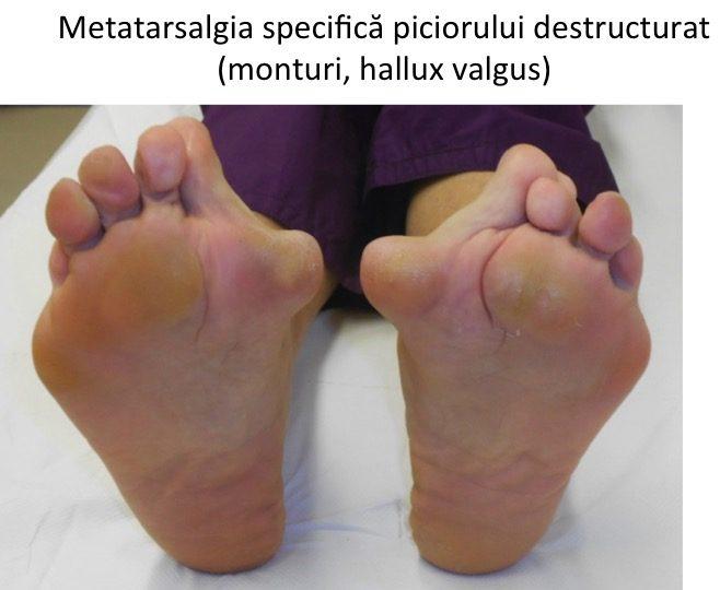 Consolidarea Piciorului Pentru Durerile