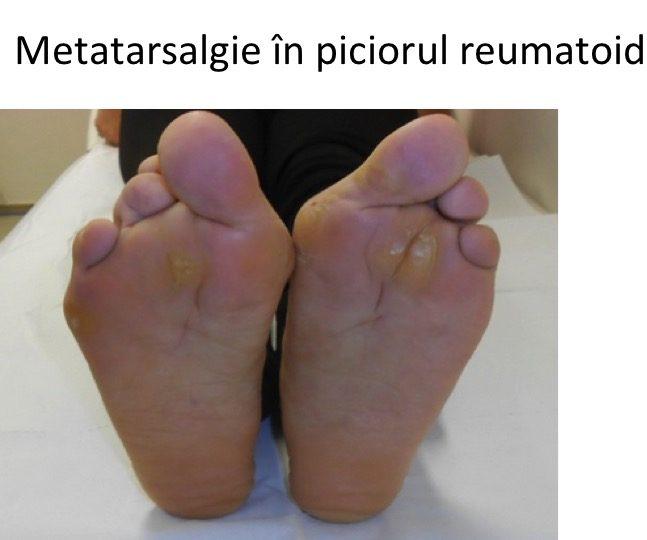 Metatarsalgie picior reumatoid
