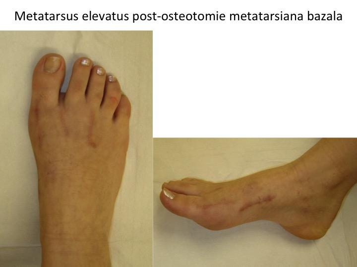 Metatarsus elevatus post osteotomie bazala