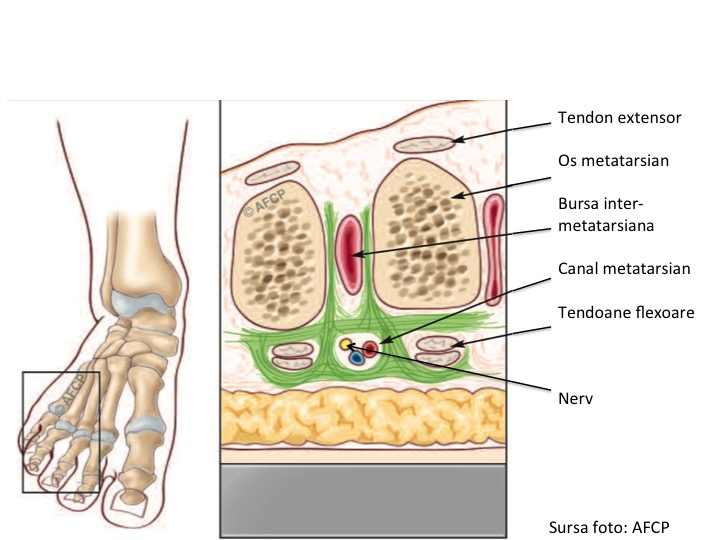 Morton Anatomie