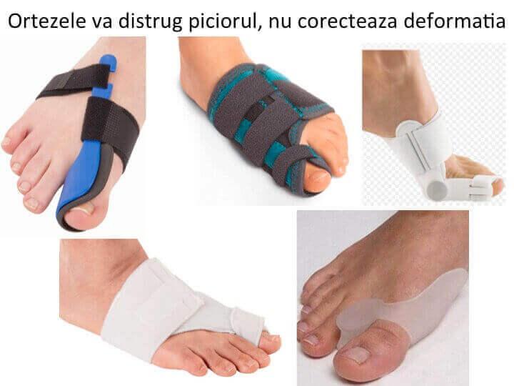 Orteze