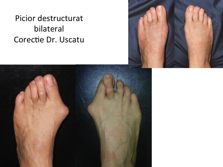 Picior degructurat bilateral 9