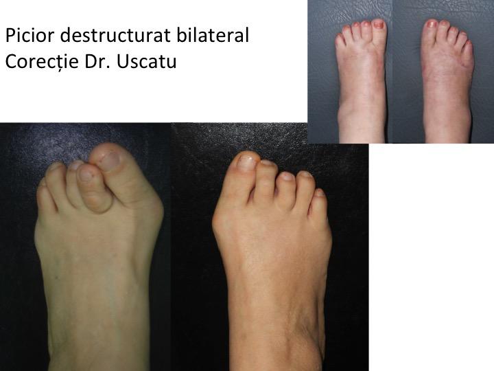 Picior destructurat bilateral 8