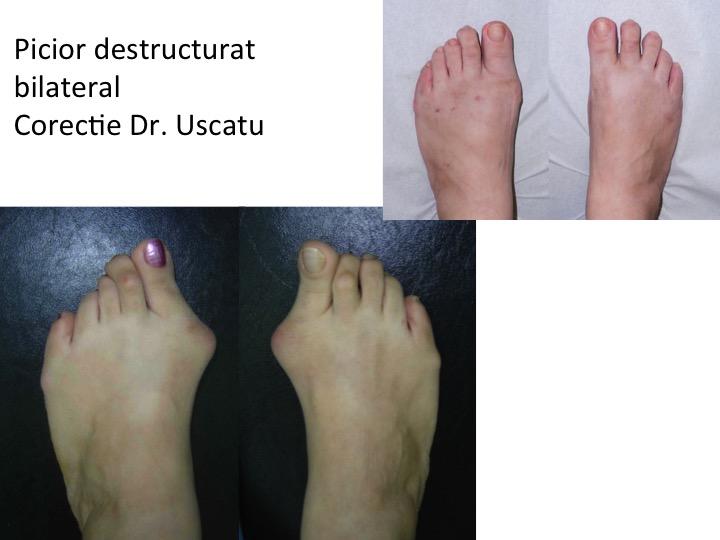 Picior destructurat 6