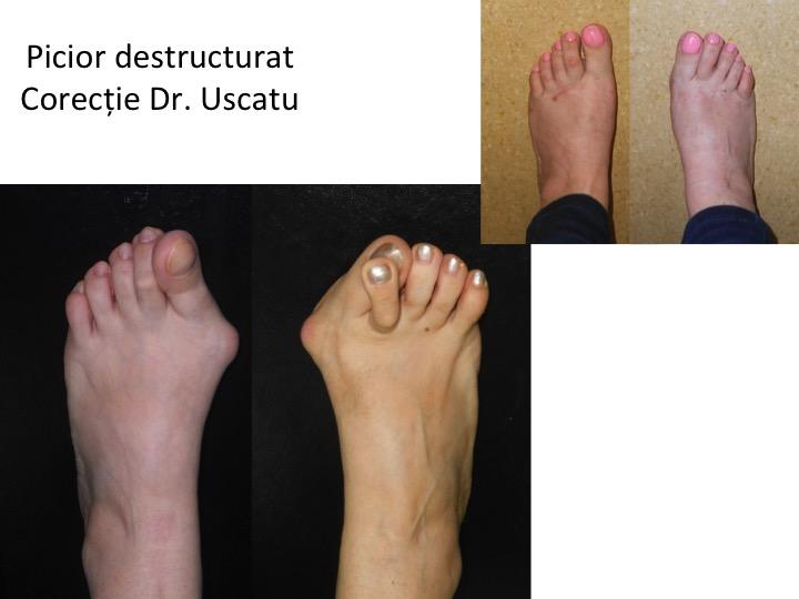 Picior destructurat 5