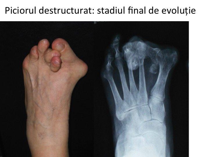 Picior destructurat Vasile