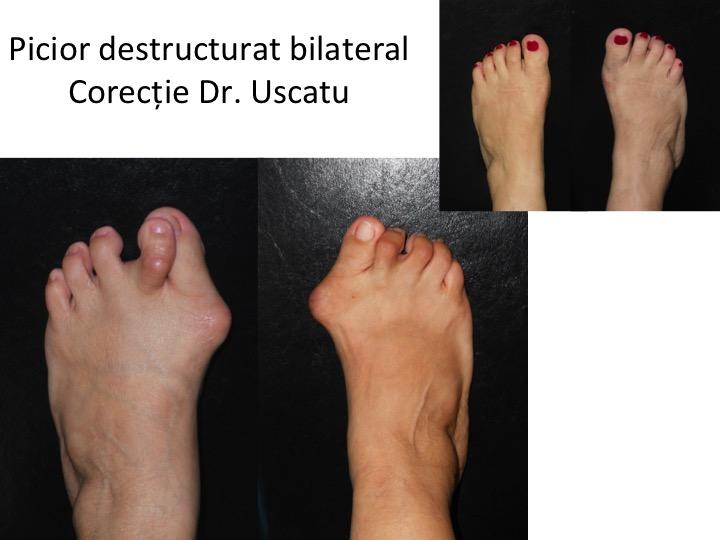 Picior destructurat