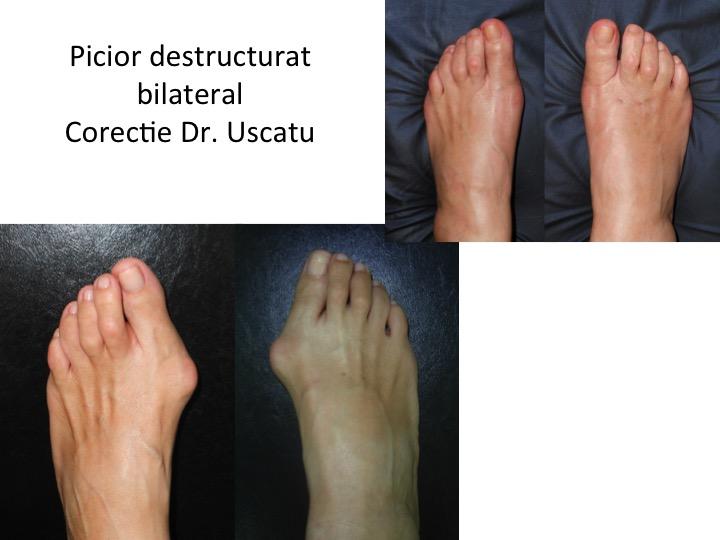 Picior destructurat bilateral 6