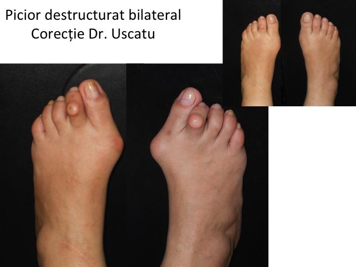 Picior destructurat bilateral 5