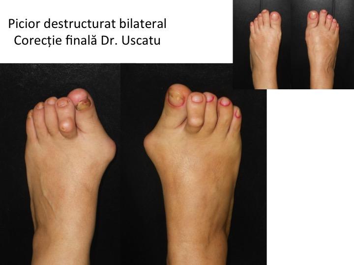 Picior destructurat bilateral 2