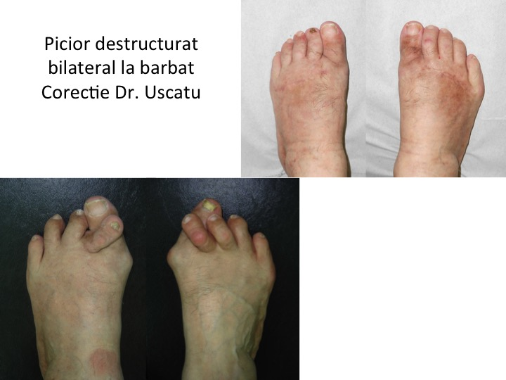 Picior destructurat bilateral barbat