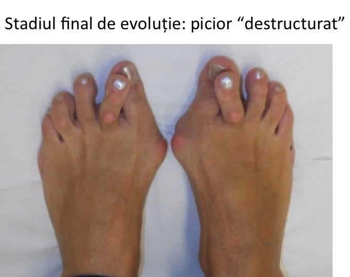 Picior destructurat bilateral
