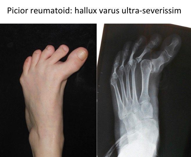 Picior reumadoid hallux varus