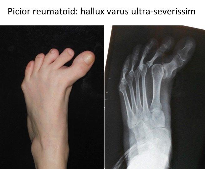 Picior reumadoid hallux varus Capatoiu