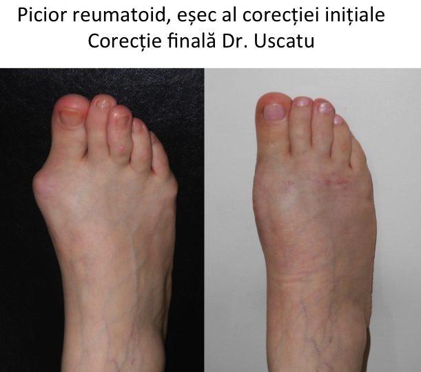 Picior reumatoid Ghoerghe