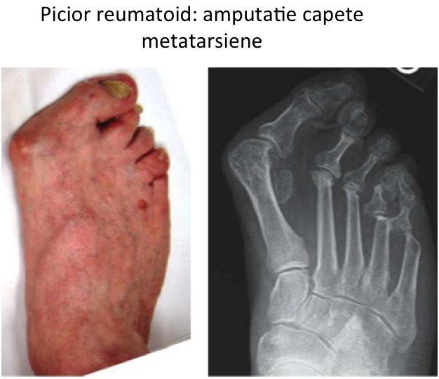 Picior reumatoid Lelievre 1