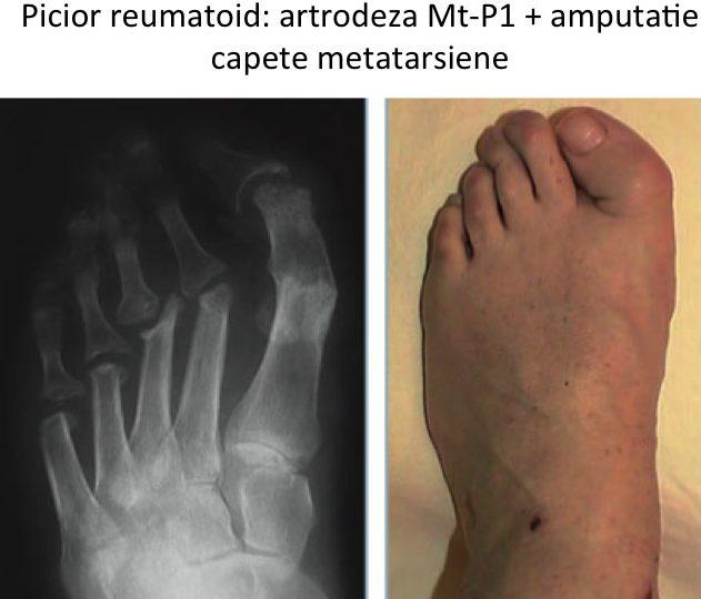 Picior reumatoid Lelievre 2
