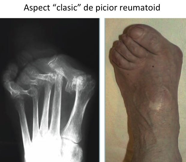 Picior reumatoid aspect clasic