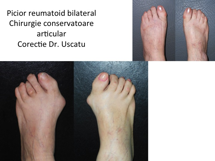 Picior reumatoid bilateral And