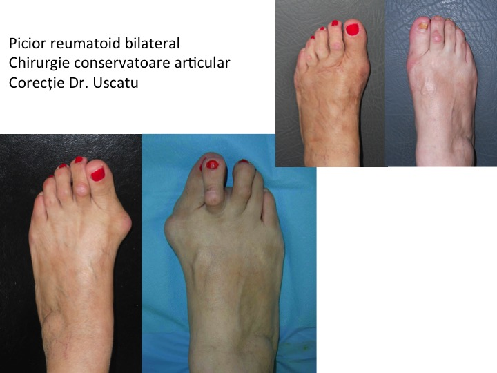 Picior reumatoid bilateral Holtea