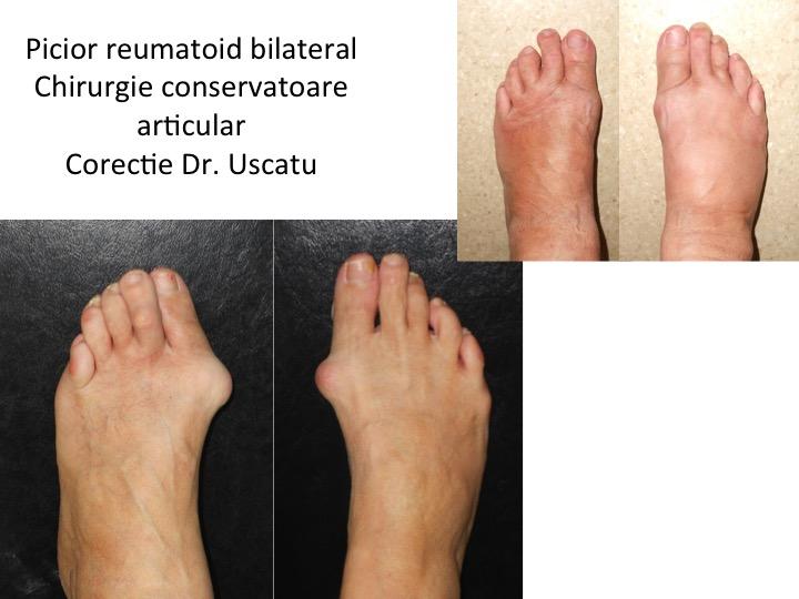Picior reumatoid bilateral Meterca
