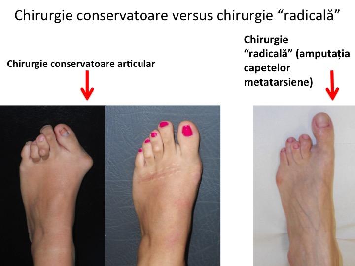 Picior reumatoid cons radical