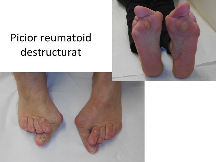 Picior reumatoid destructurat Moldovan