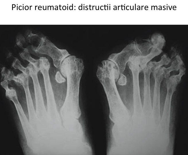 Picior reumatoid-distructii articulare masive