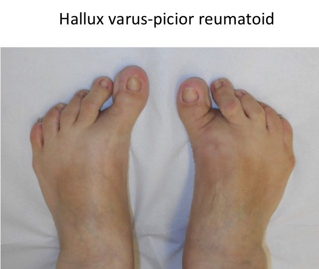 Picior reumatoid hallux varus