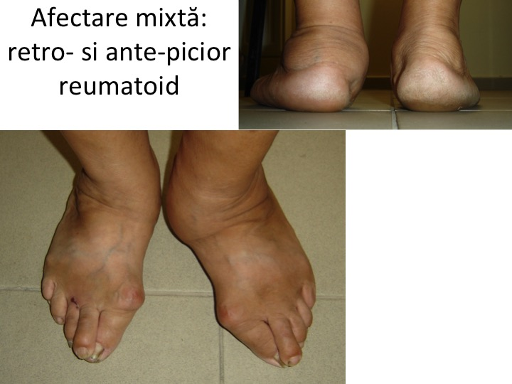 Picior reumatoid mixt Zibileanu