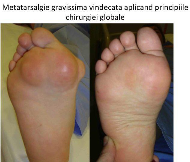 Picior reumatoid plantar